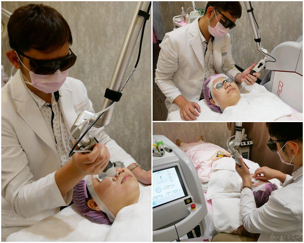 高雄皮秒雷射 | 星和醫學美容診所,細緻毛孔、改善暗沉,素顏也能自帶美肌!(賴衍翰院長)